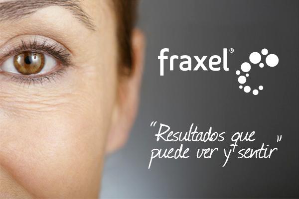 Láser Fraxel