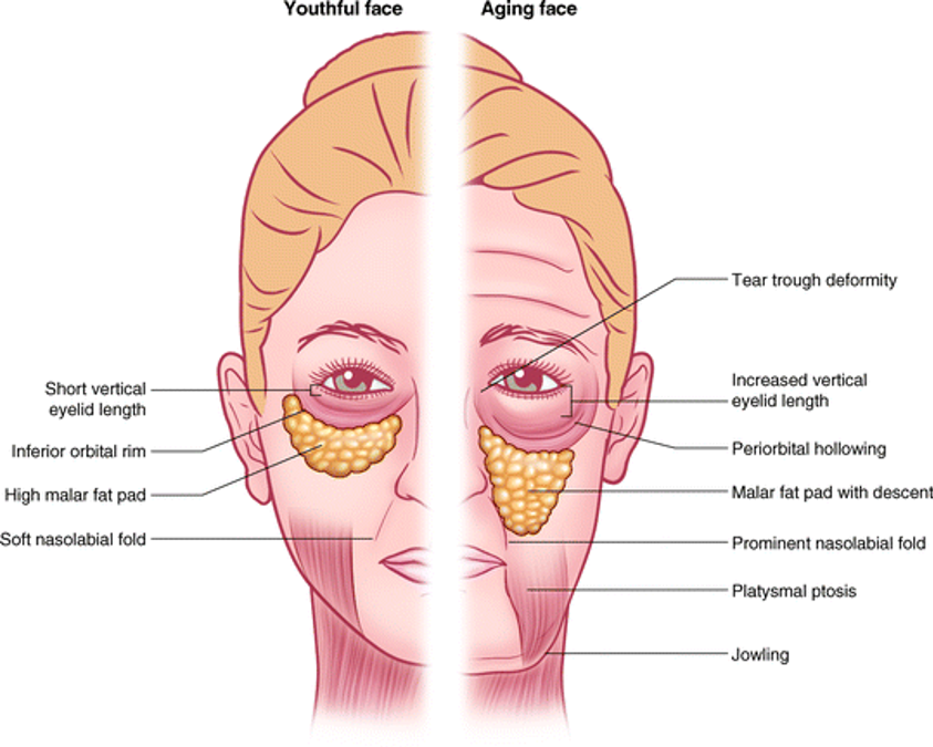 Rejuvenecimiento Periocular párpado inferior
