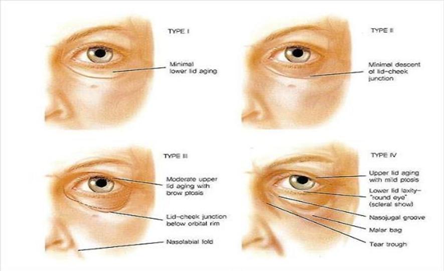 Rejuvenecimiento periocular no quirúrgico madrid 3